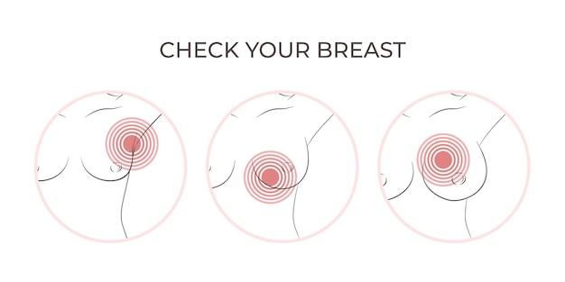 胸の痛みのアイコンセット脇の下のリンパ節にある腕を上げた痛みマーカーを持つ女性の胸の一部