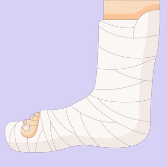 Сломанная нога в гипсовой повязке, травма кости, ортопедическая гипсовая, нарисованная в плоском стиле