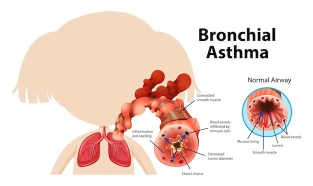 Diagramma dell'asma bronchiale con vie aeree normali e asmatiche