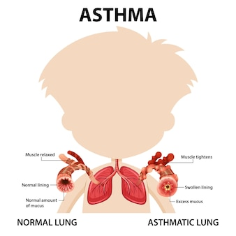 Bronchial asthma diagram with normal lung and asthmatic lung