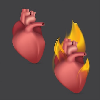 Горящее анатомическое сердце. реалистичный человеческий орган внутренней системы кровообращения в пламени. иллюстрация