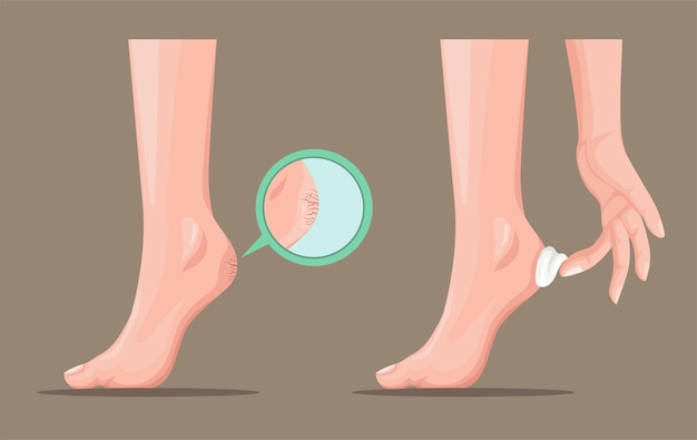 Callus cracked heel and skin lotion cream product symbol concept in cartoon realistic illustration v