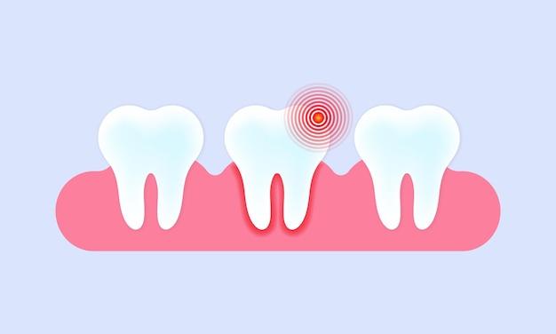 齲蝕と歯痛