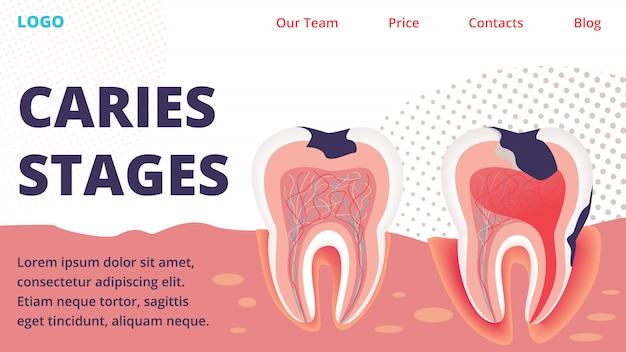 Caries different stages treatment vector website