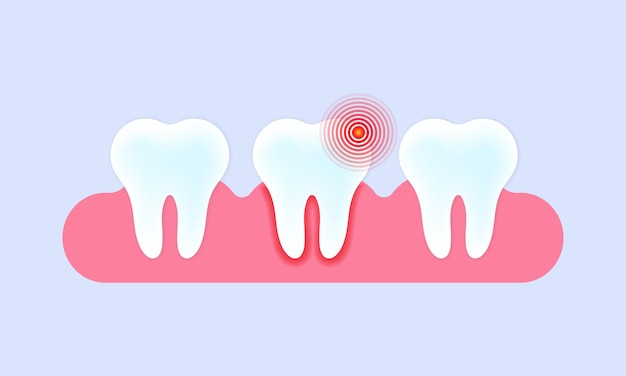 Caries and toothache