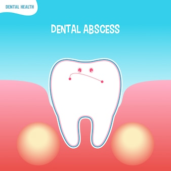 Cartoon bad tooth icon with dental abscess