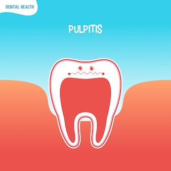 Cartoon bad tooth icon with pulpitis
