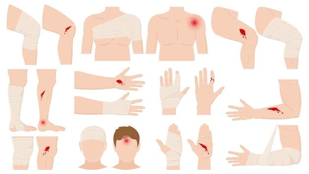 Мультфильм телесные повреждения, наложение повязки на рану. открытые и перевязанные части тела, обработанные раны, переломы векторные иллюстрации. лечение телесных повреждений человека. ранение и травма, несчастный случай
