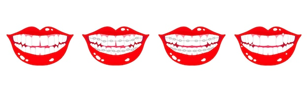 Cartoon set of smiling mouths with stages of teeth alignment using orthodontic metal braces on a white background