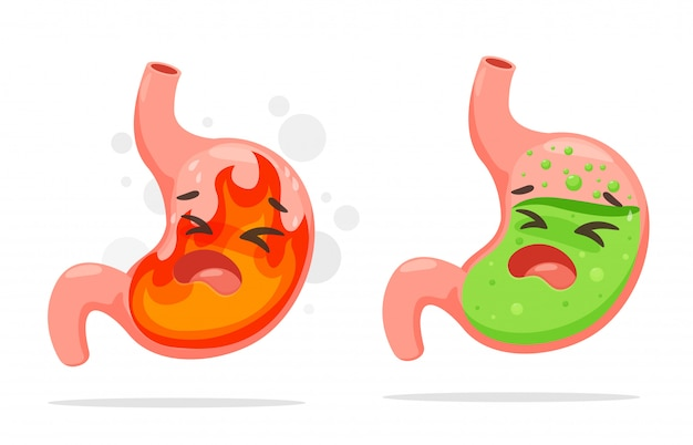 Cartoon stomach suffering from acid reflux.