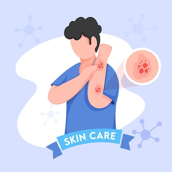 Cartoon young boy itching his hands and molecules decorated on blue background for skin care.