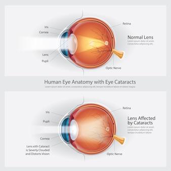 Cataracts vision disorder and normal eye vision anatomy
