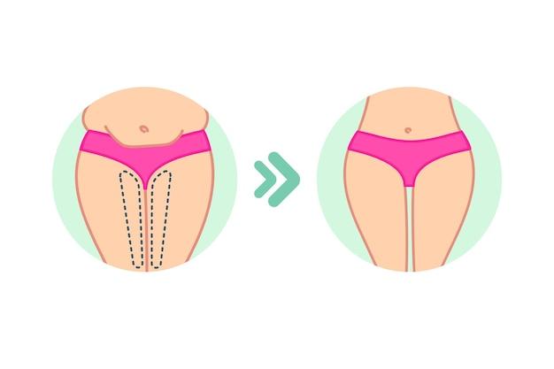 셀룰라이트 치료 프로그램 체중 감량