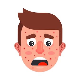彼の顔に赤いにきびを持つキャラクター。飲み物で男を動揺させた。フラットベクトルイラスト。