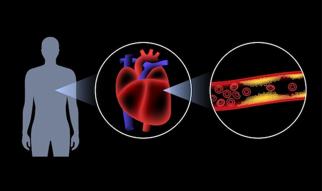 Cholesterol in human blood vessels. heart logo in man silhouette. fat cells in vein.