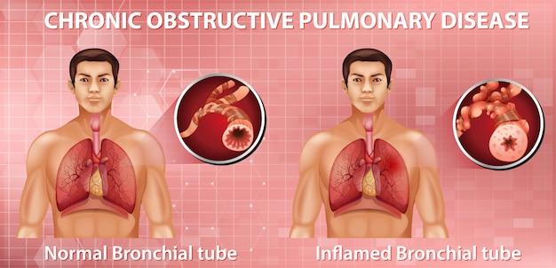 Broncopneumopatia cronica ostruttiva