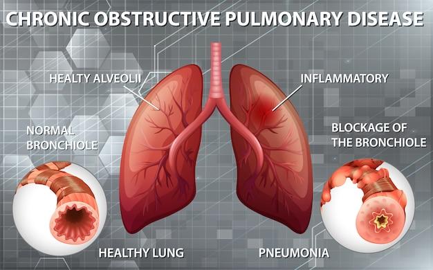 만성 폐쇄성 폐 질환