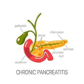 Концепция хронического панкреатита. лечение воспаления поджелудочной железы в поперечном сечении, двенадцатиперстной кишки и желчного пузыря