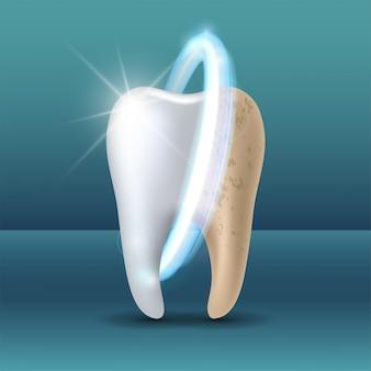 미백 전후 깨끗하고 더러운 치아