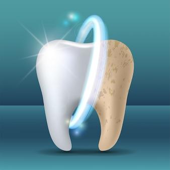 Чистый и грязный зуб до и после отбеливания