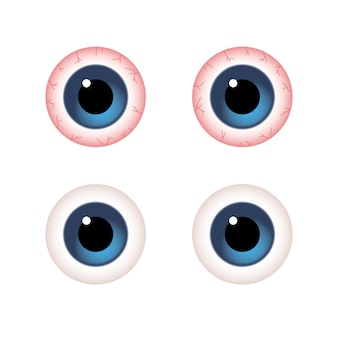 Close-up comparison of regular eyes and red illness eyes