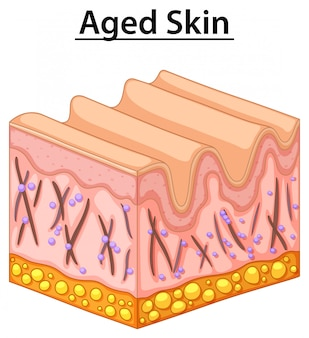 Close up diagram of aged skin
