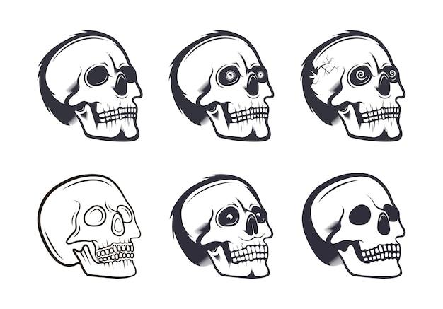 두개골 컬렉션