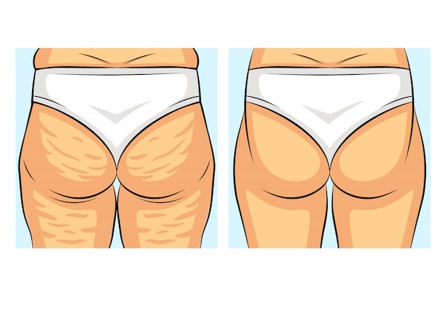 Color vector illustration before and after losing weight. girl back view. female figure with and without cellulite. fat deposits on the female body. female buttocks problem areas.