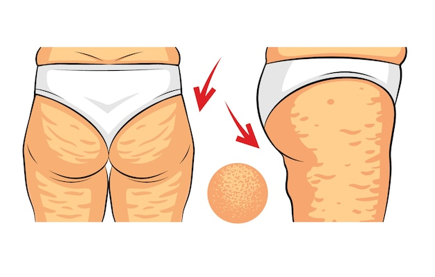 Color vector illustration of cellulite problem. female hips rear view and side view. fat deposits on the female buttocks. hip with orange peel macro view
