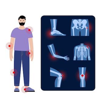 Common types of bursitis. inflamed bursa in human body. elbow, shoulder, knee pain