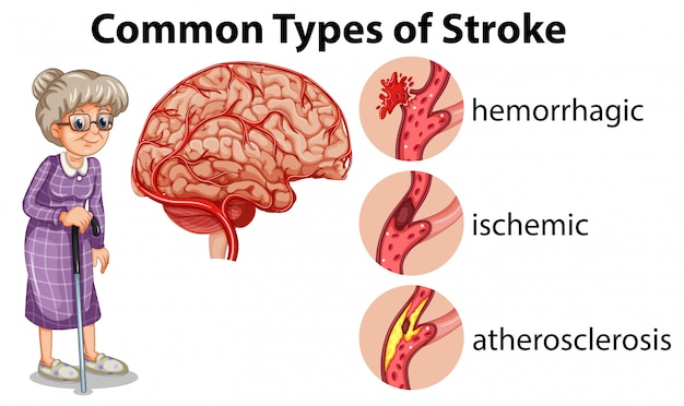 Common types of stroke