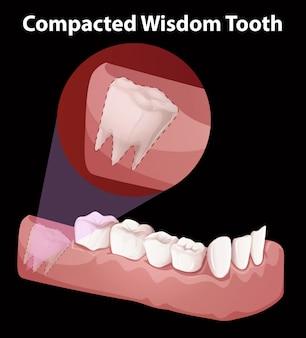 Уплотненная схема зубьев мудрости