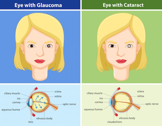Comparison chart of eyes with and without glaucoma