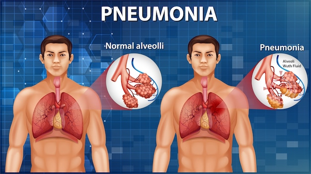 Comparison of healthy alveoli and pneumonia