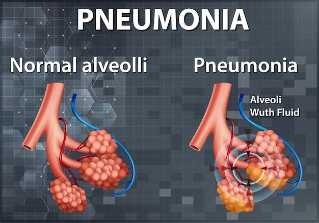 Confronto tra alveoli sani e polmonite