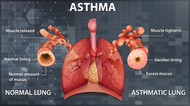 Comparison of healthy lung and asthmatic lung