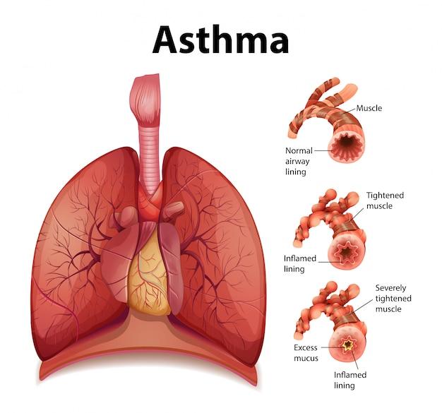 健康な肺と喘息の肺の比較
