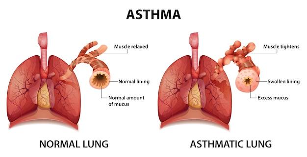 Сравнение здорового легкого и легкого, страдающего астмой