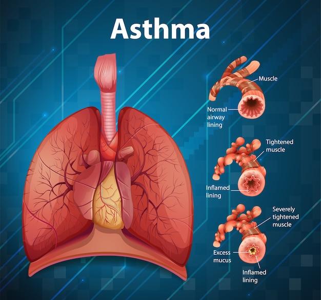 건강한 폐와 천식성 폐의 비교