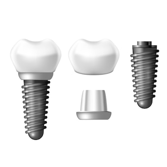 Component parts of dental implant - teeth denture
