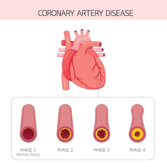 Coronary artery disease narrowing  condition caused by buildup of cholesterol and fatty inside arteries