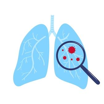 コロナウイルスcovid-19。虫眼鏡の下の肺にある中国のウイルス。症状。人間の病気。風邪と炎症。肺炎
