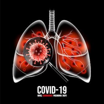 コロナウイルス病covid-19感染症。人間の肺に虫眼鏡が付いています。 covid-19、コロナウイルススクリーニングコンセプト、イラストというコロナウイルス病の新しい正式名称