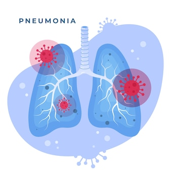 コロナウイルス肺炎とイラスト肺
