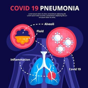 Coronavirus pneumonia theme