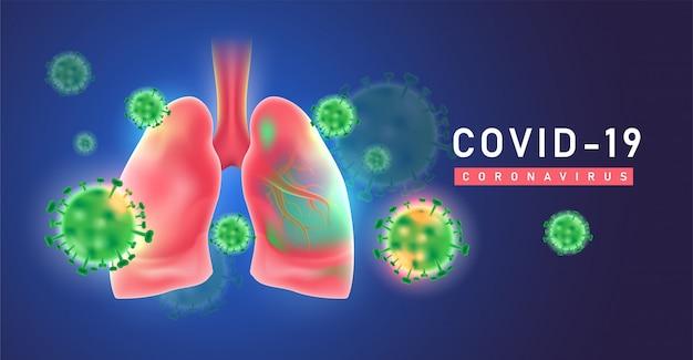 Covid-19, коронавирусы в легких. китай возбудитель респираторных вирусов гриппа квидовых клеток.