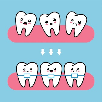 Cute kawaii tooth characters before and after brace correction