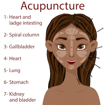 Dark-skinned girl with an acupuncture scheme of facial zones. cartoon style. illustration.