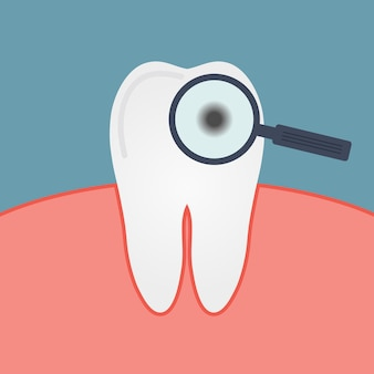 Decay tooth. caries. gum, mouth, magnifying glass, enamel disease. the microbe under a microscope. diagnostics dentist. vector illustration.