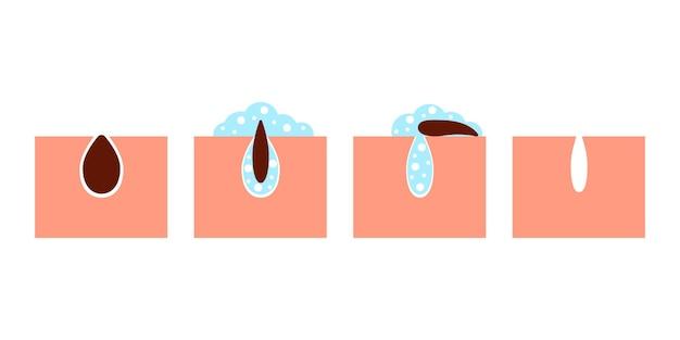 にきびスキンケアからの皮膚毛穴のディープクレンジング顔の皮膚の汚れを洗う手順